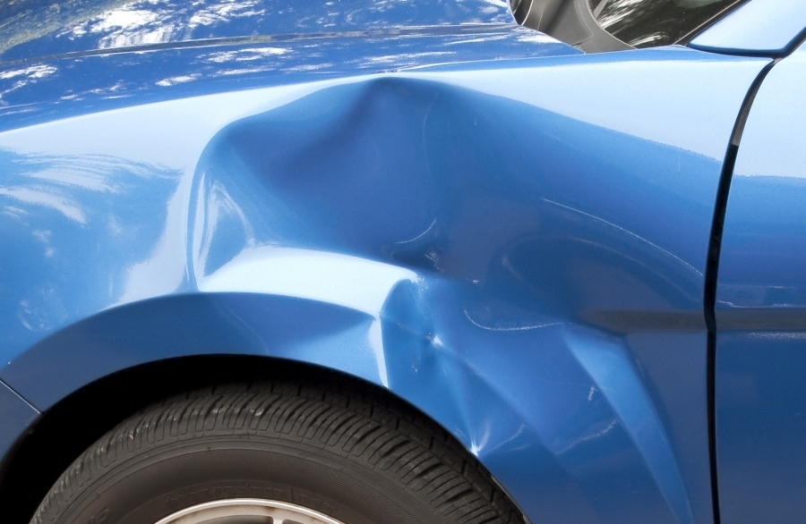 Best Diy Car Dent Repair